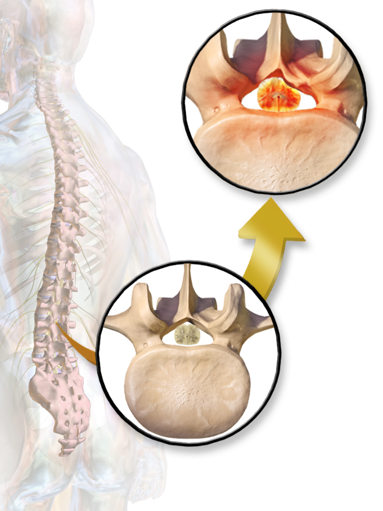 Spinal Stenosis Surgery