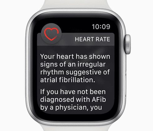 Apple Watch ECG Feature